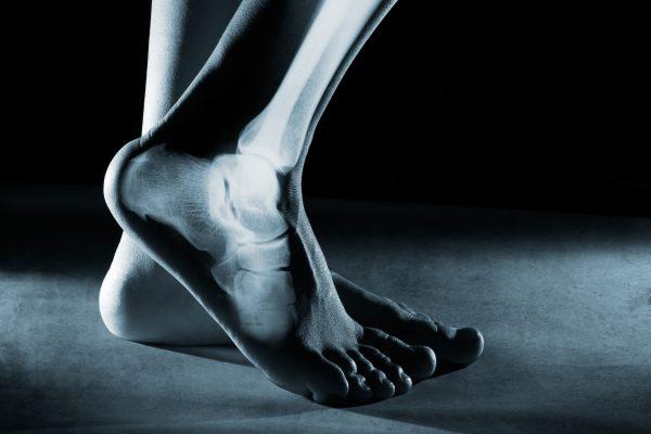 Rötgenbild Fuß und Sprunggelenk